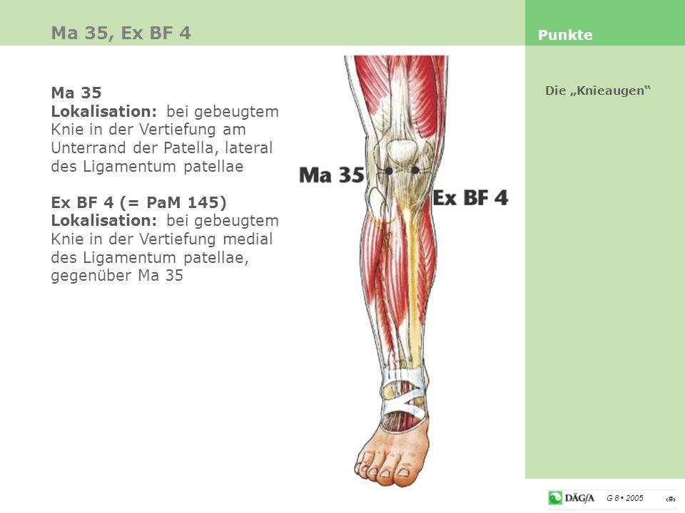 """20 G 8 2005 Ma 35, Ex BF 4 Punkte Die """"Knieaugen"""" Ma 35 Lokalisation: bei gebeugtem Knie in der Vertiefung am Unterrand der Patella, lateral des Ligam"""