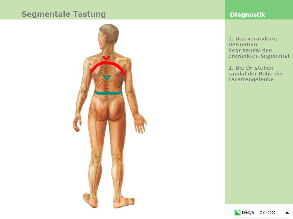 4 G 8 2005 Segmentale Tastung Diagnostik 1. Das veränderte Dermatom liegt kaudal des erkrankten Segments! 2. Die DF stehen caudal der Höhe der Facette