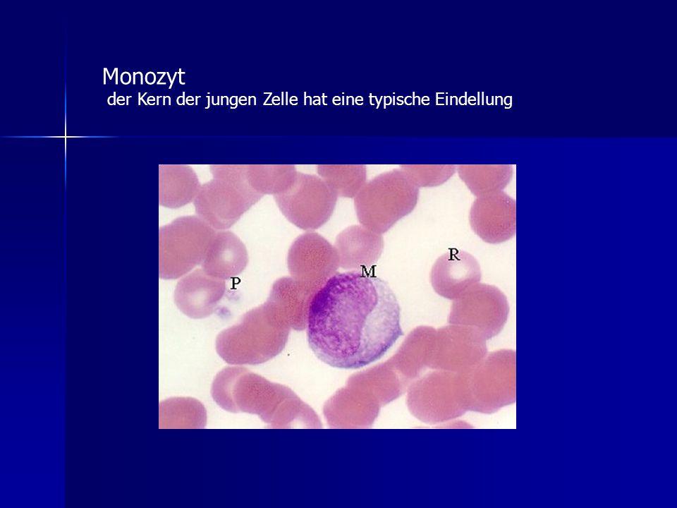 Monozyt der Kern der jungen Zelle hat eine typische Eindellung