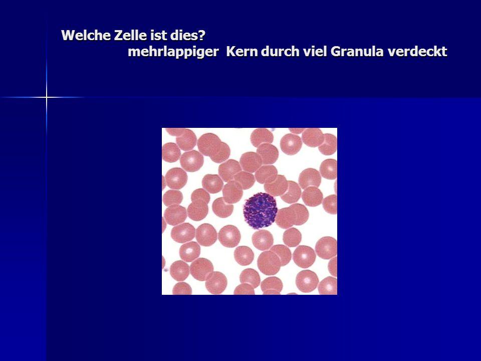 Welche Zelle ist dies? mehrlappiger Kern durch viel Granula verdeckt
