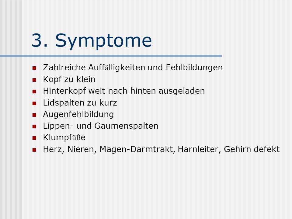 4. Behandlungsm ö glichkeiten Behandlung der Trisomie 18 zurzeit kaum m ö glich