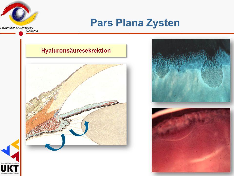 Hyaluronsäuresekrektion Pars Plana Zysten