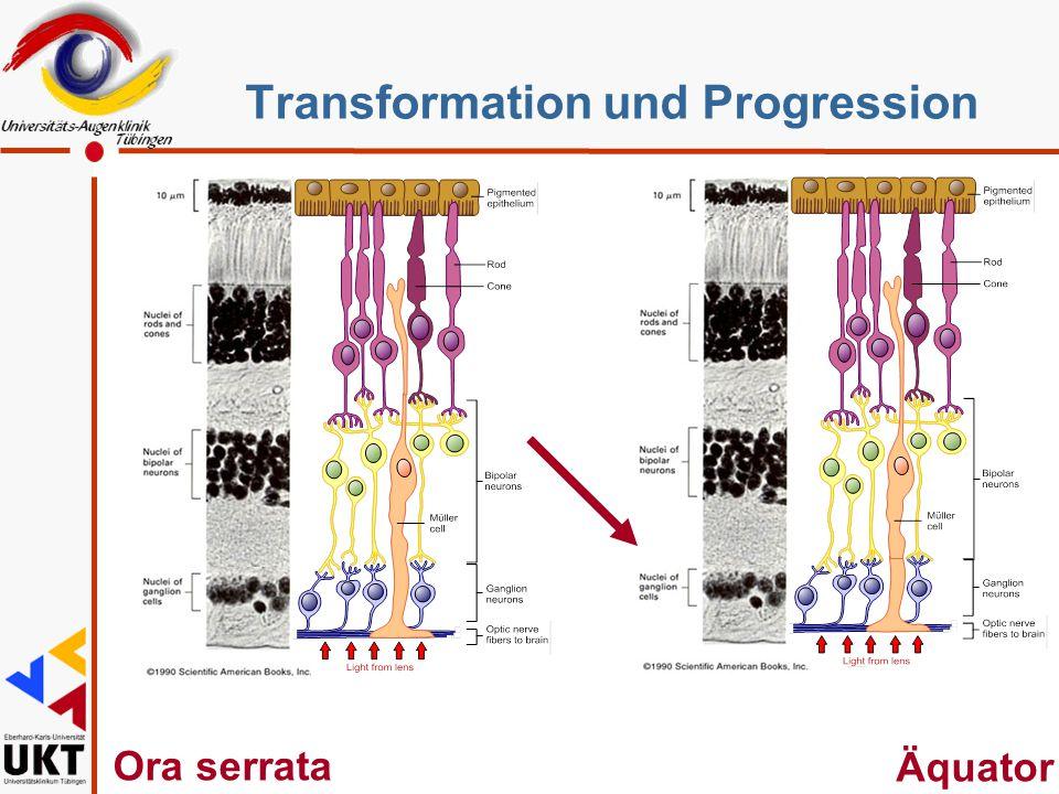 Ora serrata Äquator Transformation und Progression