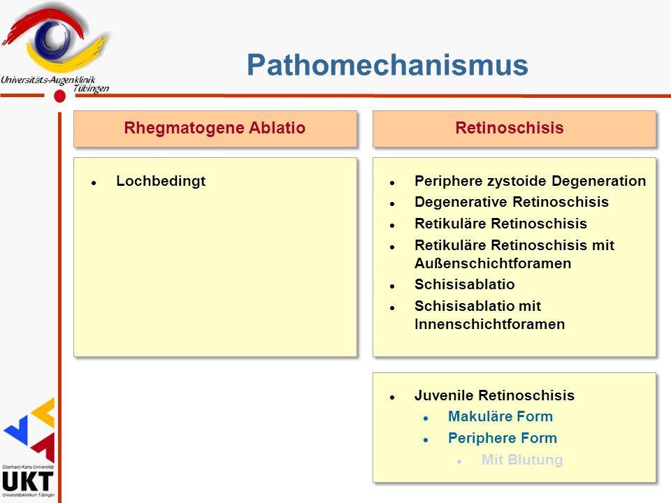 Pathomechanismus RetinoschisisRhegmatogene Ablatio l Periphere zystoide Degeneration l Degenerative Retinoschisis l Retikuläre Retinoschisis l Retikul