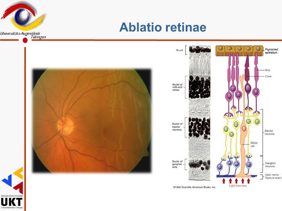 Ablatio retinae
