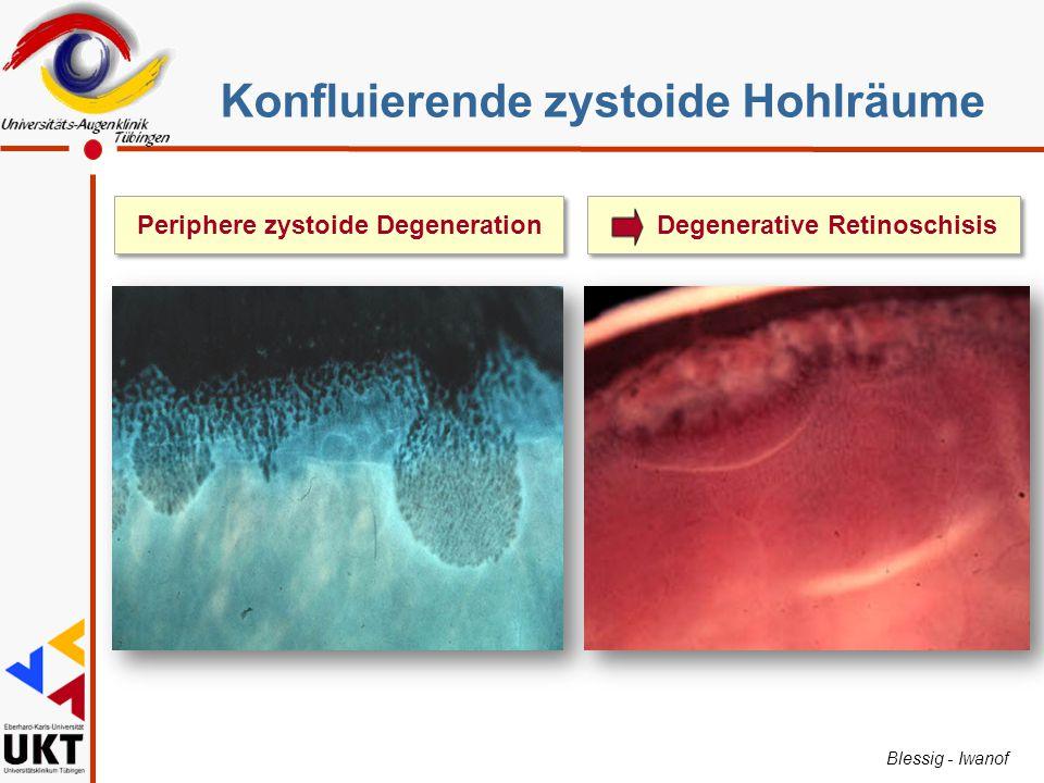 Blessig - Iwanof Periphere zystoide DegenerationDegenerative Retinoschisis Konfluierende zystoide Hohlräume