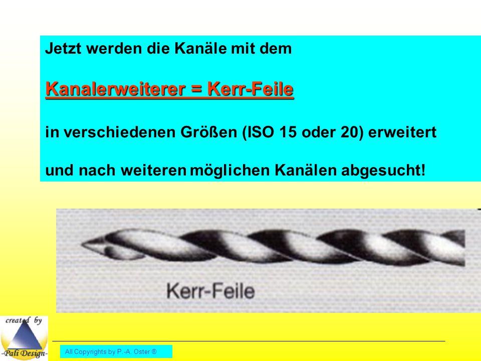All Copyrights by P.-A. Oster ® Jetzt werden die Kanäle mit dem Kanalerweiterer = Kerr-Feile in verschiedenen Größen (ISO 15 oder 20) erweitert und na