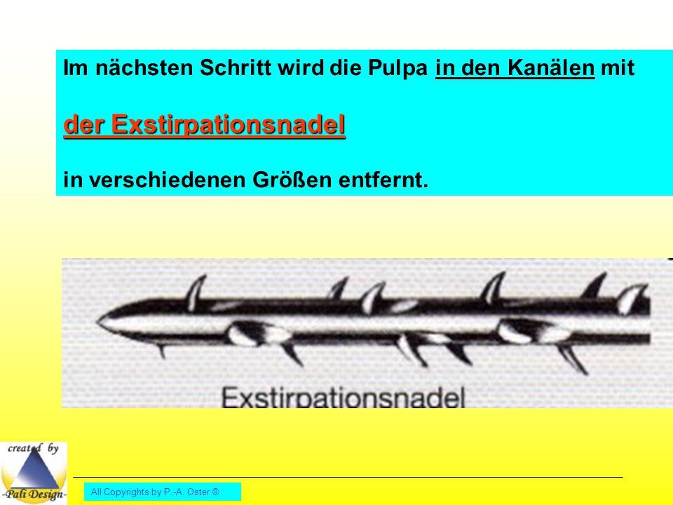 All Copyrights by P.-A. Oster ® Im nächsten Schritt wird die Pulpa in den Kanälen mit der Exstirpationsnadel in verschiedenen Größen entfernt.