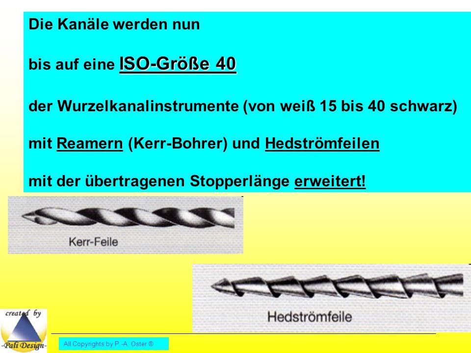 All Copyrights by P.-A. Oster ® Die Kanäle werden nun ISO-Größe 40 bis auf eine ISO-Größe 40 der Wurzelkanalinstrumente (von weiß 15 bis 40 schwarz) m