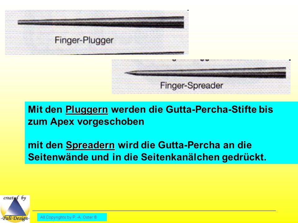 All Copyrights by P.-A. Oster ® Pluggern Mit den Pluggern werden die Gutta-Percha-Stifte bis zum Apex vorgeschoben Spreadern mit den Spreadern wird di