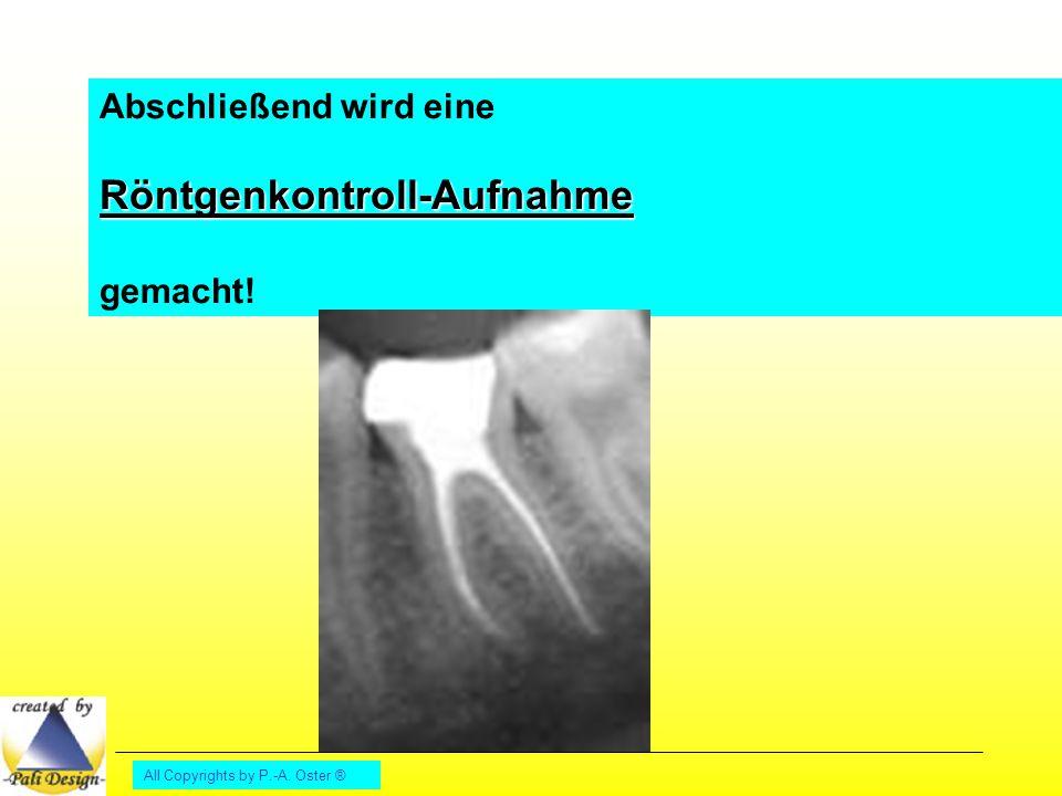 All Copyrights by P.-A. Oster ® Abschließend wird eineRöntgenkontroll-Aufnahme gemacht!