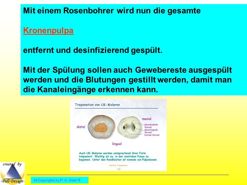 All Copyrights by P.-A. Oster ® Mit einem Rosenbohrer wird nun die gesamte Kronenpulpa entfernt und desinfizierend gespült. Mit der Spülung sollen auc