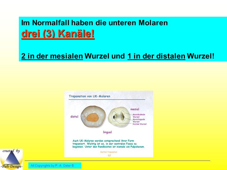 All Copyrights by P.-A. Oster ® drei (3) Kanäle! Im Normalfall haben die unteren Molaren drei (3) Kanäle! 2 in der mesialen Wurzel und 1 in der distal