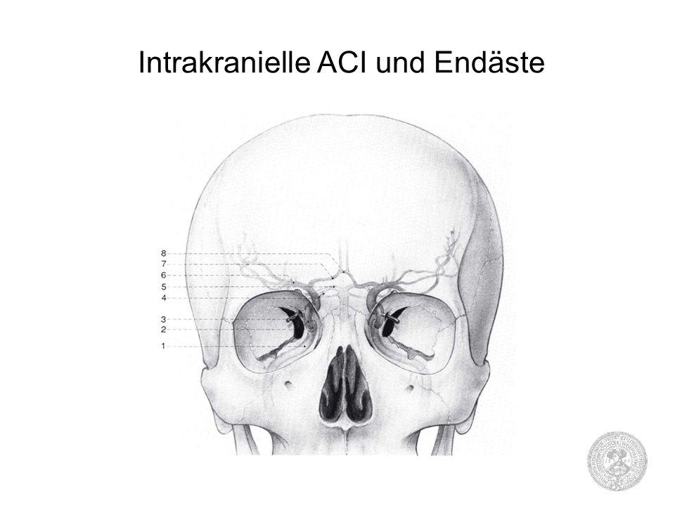 Intrakranielle ACI und Endäste