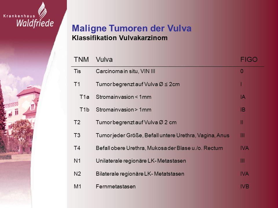 Maligne Tumoren der Vulva Klassifikation Vulvakarzinom TNMVulvaFIGO TisCarcinoma in situ, VIN III0 T1Tumor begrenzt auf Vulva Ø ≤ 2cmI T1aStromainvasion < 1mmIA T1bStromainvasion > 1mmIB T2Tumor begrenzt auf Vulva Ø 2 cmII T3Tumor jeder Größe, Befall untere Urethra, Vagina, AnusIII T4Befall obere Urethra, Mukosa der Blase u./o.