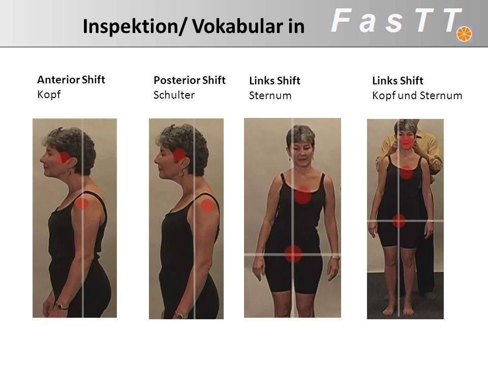 Inspektion/ Vokabular in Posterior Shift Schulter Links Shift Sternum Anterior Shift Kopf Links Shift Kopf und Sternum