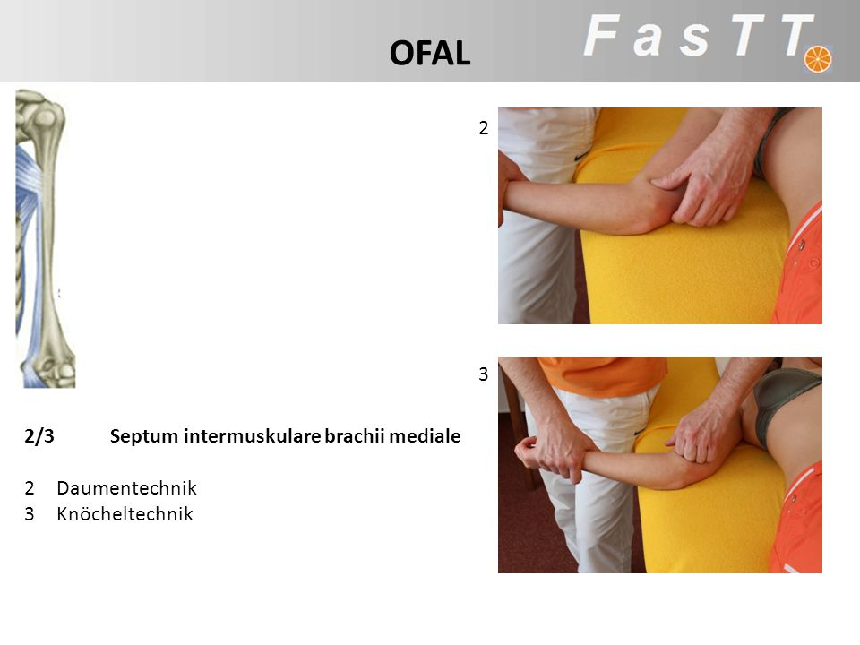 2 3 2/3Septum intermuskulare brachii mediale 2Daumentechnik 3Knöcheltechnik OFAL