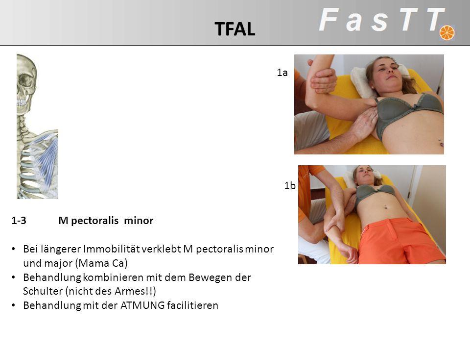 1a 1b 1-3M pectoralis minor Bei längerer Immobilität verklebt M pectoralis minor und major (Mama Ca) Behandlung kombinieren mit dem Bewegen der Schult