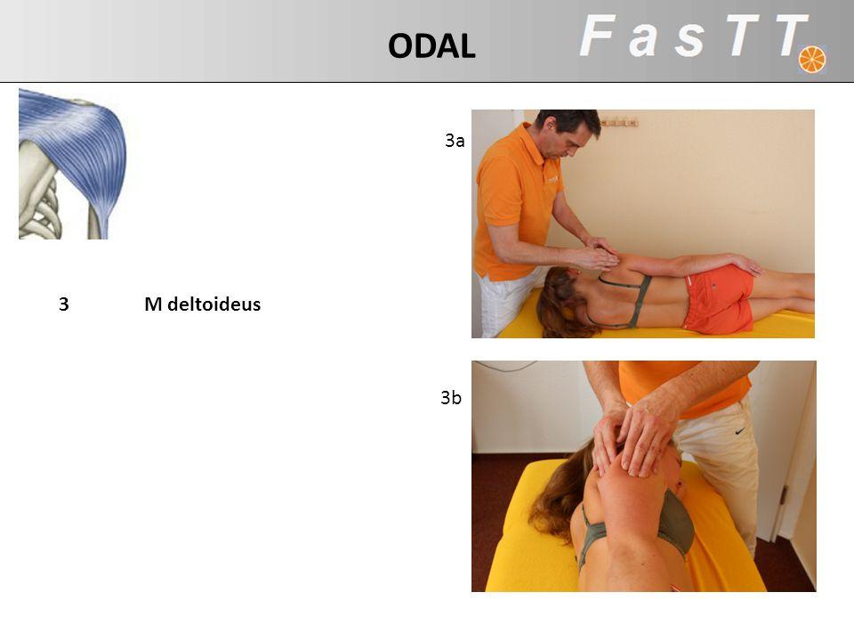 3a 3b 3M deltoideus ODAL