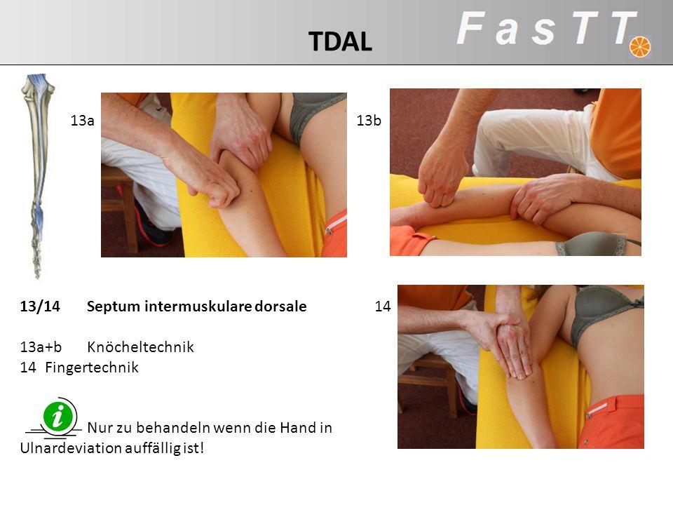 13/14Septum intermuskulare dorsale 13a+bKnöcheltechnik 14Fingertechnik Nur zu behandeln wenn die Hand in Ulnardeviation auffällig ist! 14 13b13a TDAL