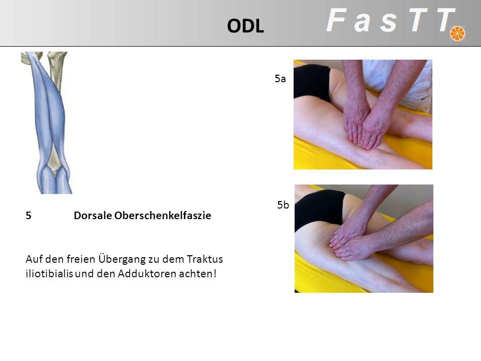 5Dorsale Oberschenkelfaszie Auf den freien Übergang zu dem Traktus iliotibialis und den Adduktoren achten! 5b 5a ODL