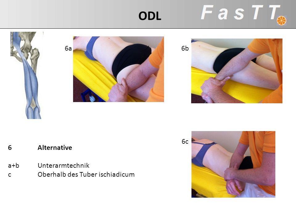 6Alternative a+bUnterarmtechnik cOberhalb des Tuber ischiadicum 6a 6c 6b ODL