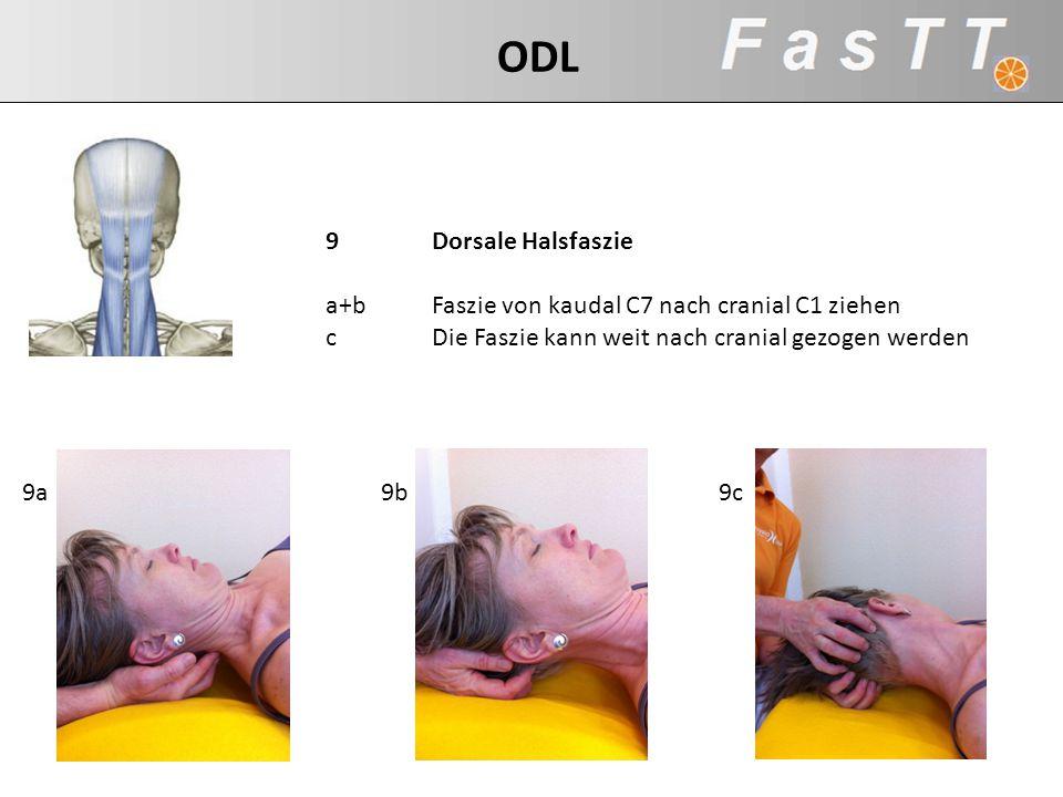 9Dorsale Halsfaszie a+bFaszie von kaudal C7 nach cranial C1 ziehen cDie Faszie kann weit nach cranial gezogen werden 9c9b9a ODL