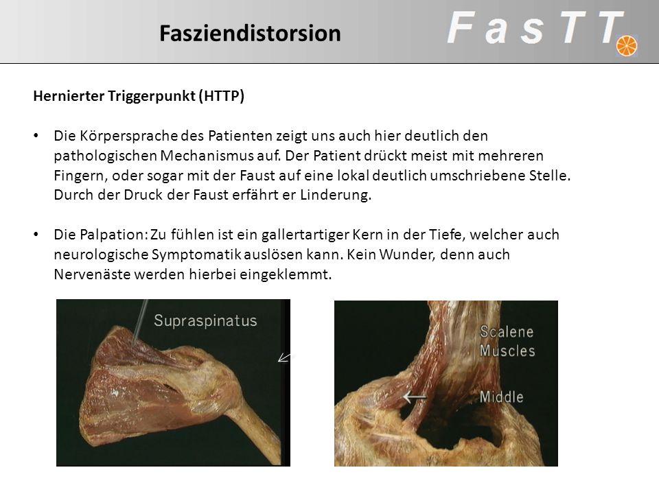 Hernierter Triggerpunkt (HTTP) Die Körpersprache des Patienten zeigt uns auch hier deutlich den pathologischen Mechanismus auf. Der Patient drückt mei