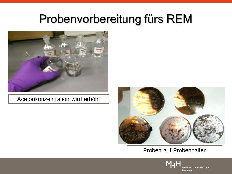 Probenvorbereitung fürs REM Acetonkonzentration wird erhöht Proben auf Probenhalter