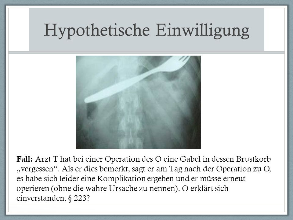 """Hypothetische Einwilligung Fall: Arzt T hat bei einer Operation des O eine Gabel in dessen Brustkorb """"vergessen ."""