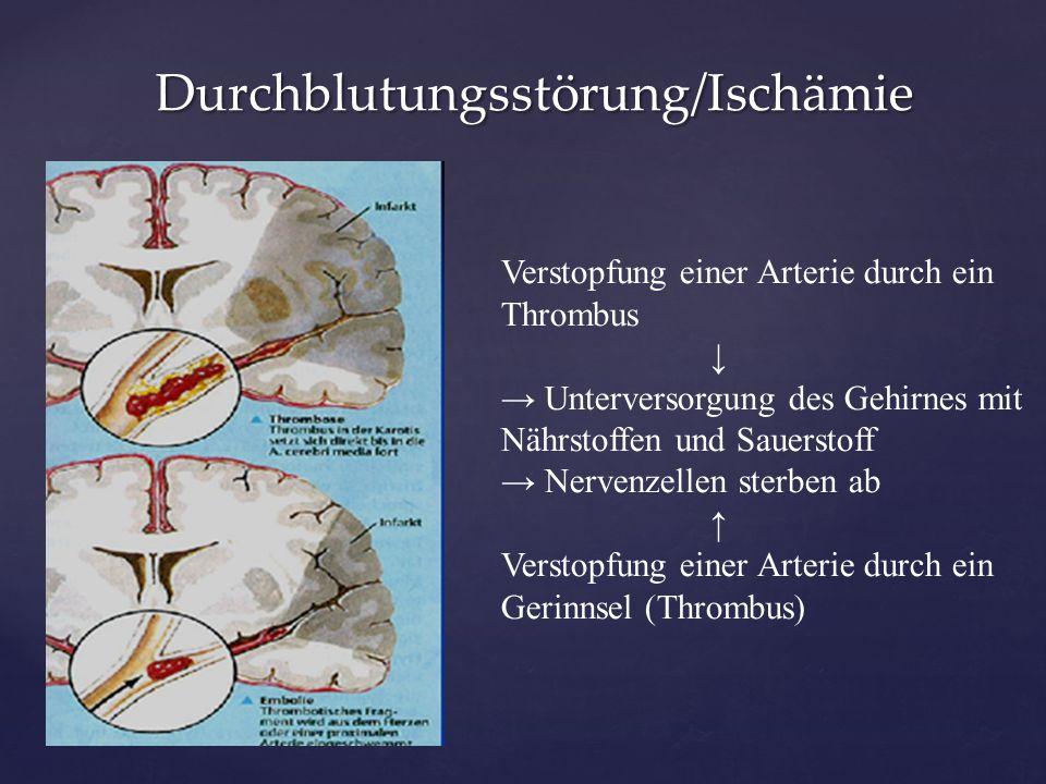 Durchblutungsstörung/Ischämie Durchblutungsstörung/Ischämie Verstopfung einer Arterie durch ein Thrombus ↓ → Unterversorgung des Gehirnes mit Nährstof