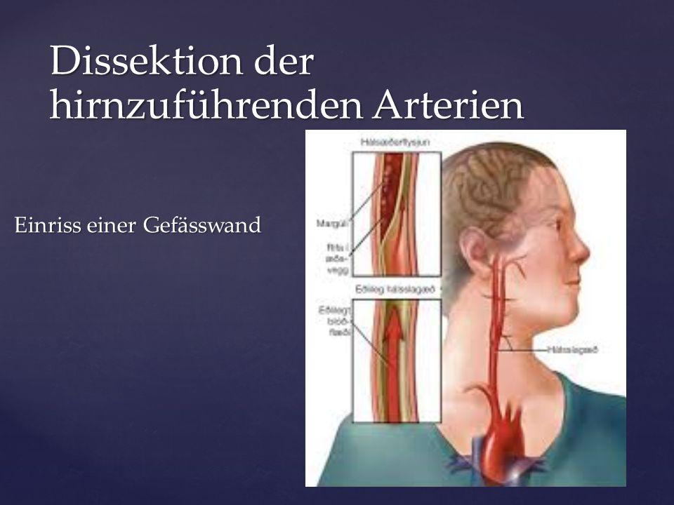 Einriss einer Gefässwand Einriss einer Gefässwand Dissektion der hirnzuführenden Arterien