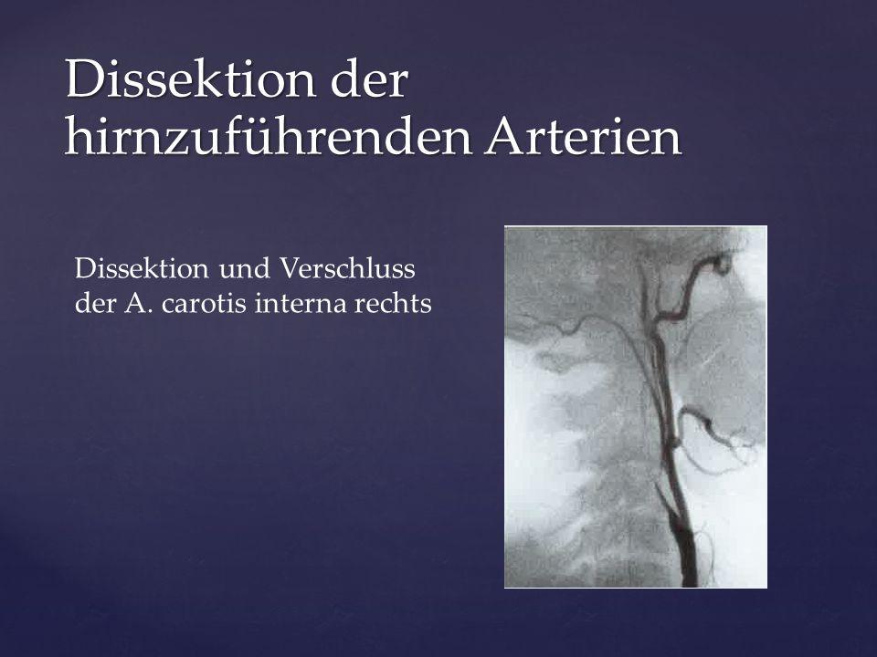 Dissektion und Verschluss der A. carotis interna rechts