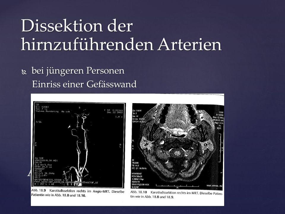  bei jüngeren Personen Einriss einer Gefässwand Einriss einer Gefässwand Arterien-Dissektion Dissektion der hirnzuführenden Arterien