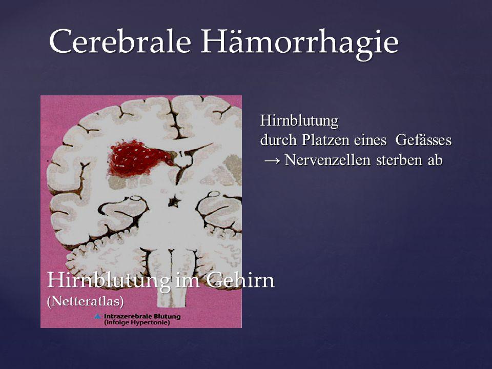 Hirnblutung im Gehirn (Netteratlas) Hirnblutung durch Platzen eines Gefässes → Nervenzellen sterben ab → Nervenzellen sterben ab Cerebrale Hämorrhagie