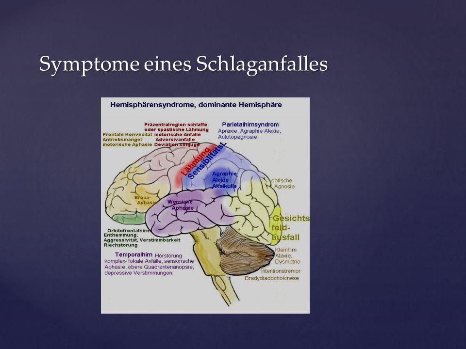 Symptome eines Schlaganfalles