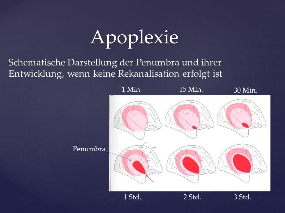 Apoplexie Schematische Darstellung der Penumbra und ihrer Entwicklung, wenn keine Rekanalisation erfolgt ist 3 Std. 15 Min. 30 Min. 1 Std.2 Std. 1 Min