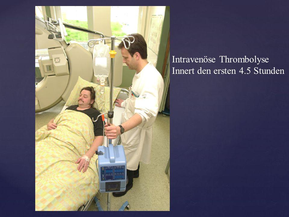 Intravenöse Thrombolyse Innert den ersten 4.5 Stunden