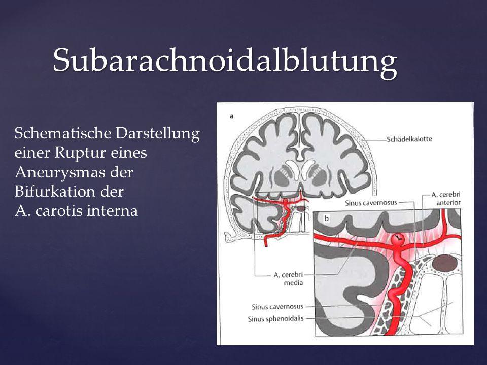 Notfall Subarachnoidalblutung Schematische Darstellung einer Ruptur eines Aneurysmas der Bifurkation der A. carotis interna
