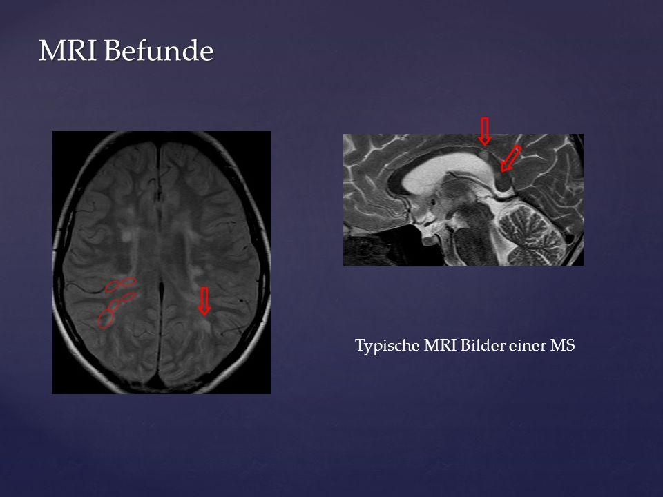 MRI Befunde Typische MRI Bilder einer MS