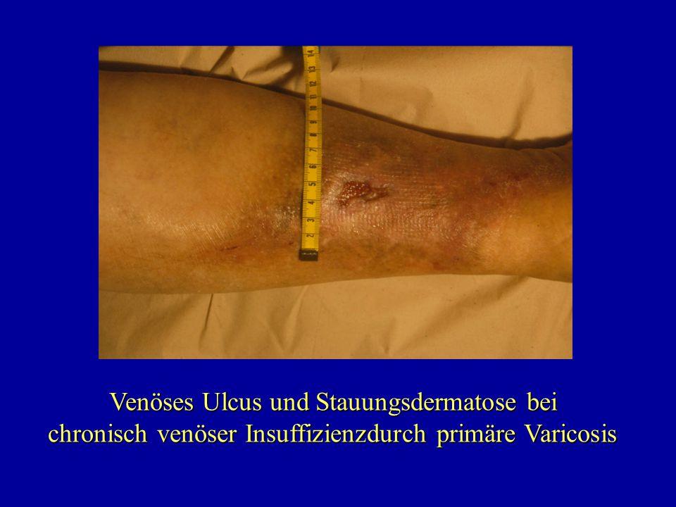 Venöses Ulcus und Stauungsdermatose bei chronisch venöser Insuffizienzdurch primäre Varicosis chronisch venöser Insuffizienzdurch primäre Varicosis
