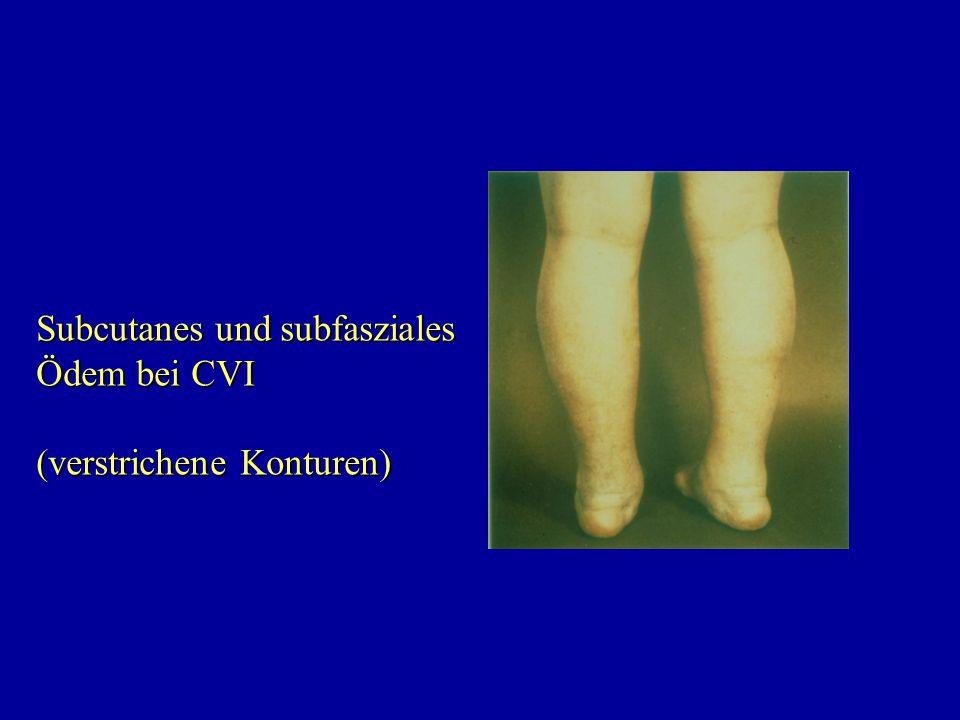Subcutanes und subfasziales Ödem bei CVI (verstrichene Konturen)