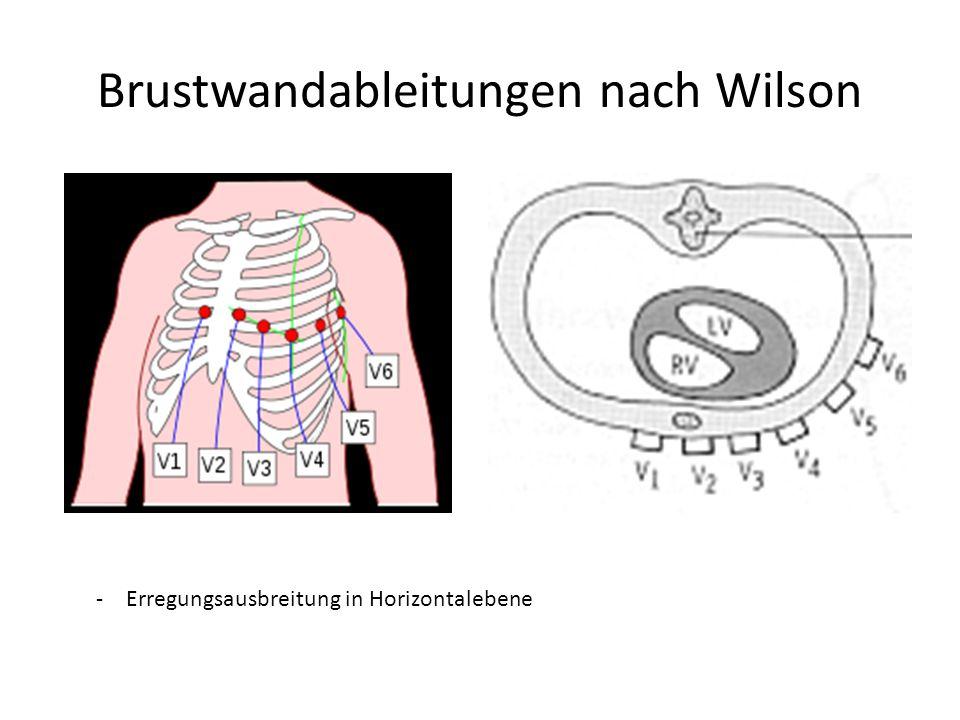 Brustwandableitungen nach Wilson -Erregungsausbreitung in Horizontalebene