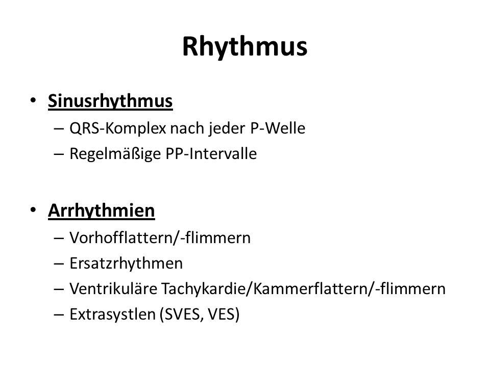 Rhythmus Sinusrhythmus – QRS-Komplex nach jeder P-Welle – Regelmäßige PP-Intervalle Arrhythmien – Vorhofflattern/-flimmern – Ersatzrhythmen – Ventriku