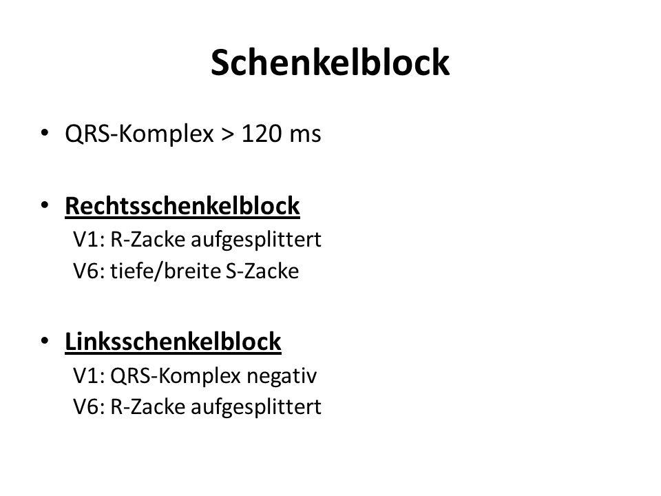 Schenkelblock QRS-Komplex > 120 ms Rechtsschenkelblock V1: R-Zacke aufgesplittert V6: tiefe/breite S-Zacke Linksschenkelblock V1: QRS-Komplex negativ