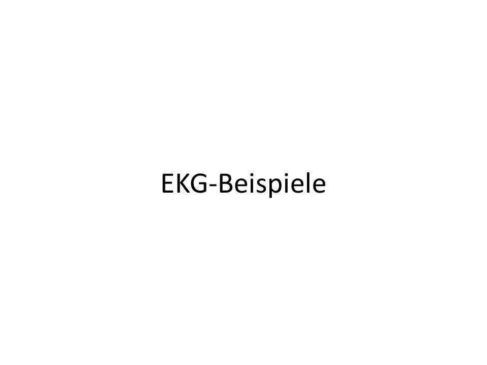 EKG-Beispiele