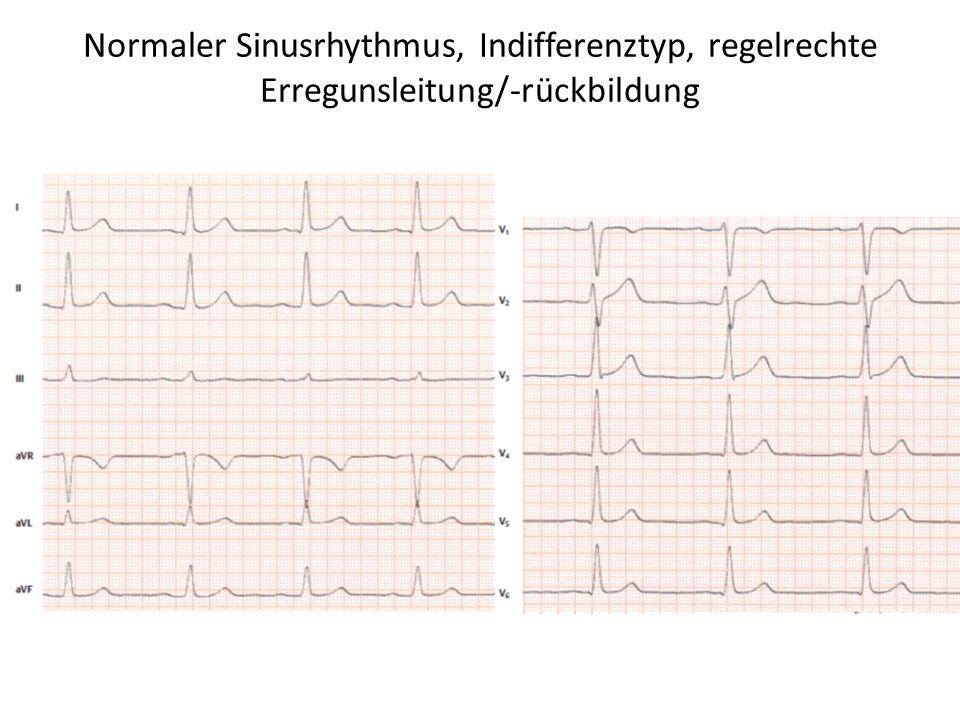 Normaler Sinusrhythmus, Indifferenztyp, regelrechte Erregunsleitung/-rückbildung