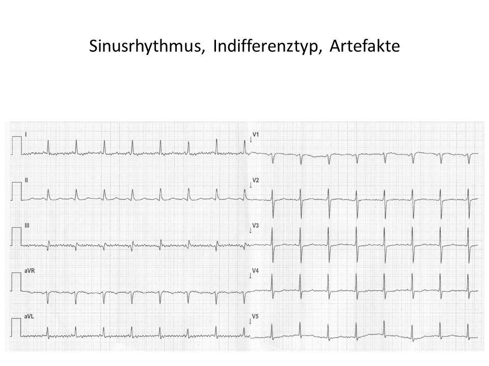Sinusrhythmus, Indifferenztyp, Artefakte