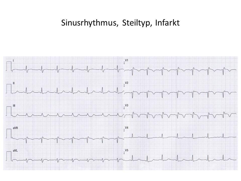 Sinusrhythmus, Steiltyp, Infarkt