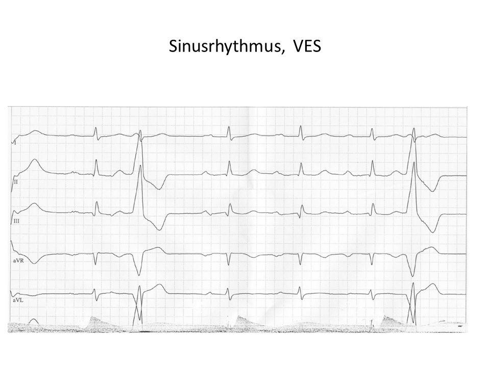 Sinusrhythmus, VES